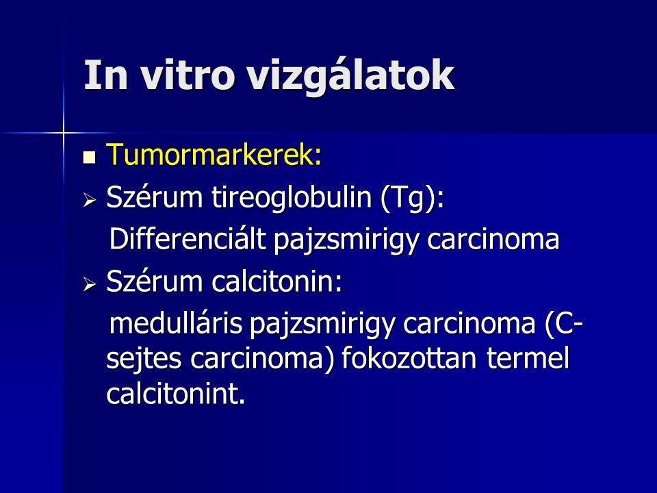 In vitro vizgálatok Tumormarkerek: Szérum tireoglobulin (Tg):