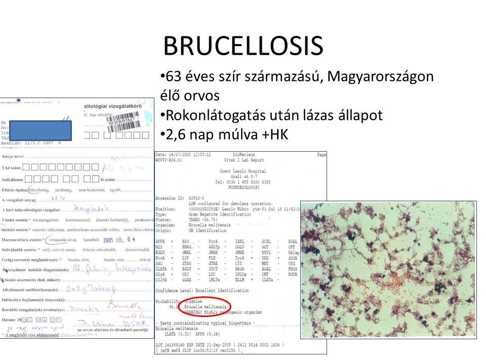 BRUCELLOSIS 63 éves szír származású, Magyarországon élő orvos