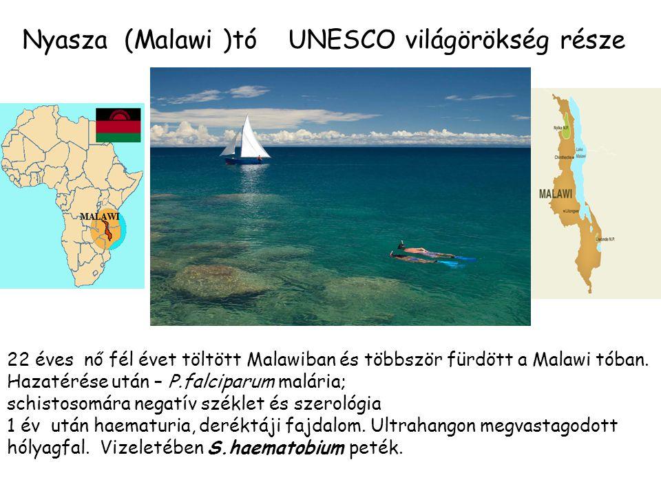 Nyasza (Malawi )tó UNESCO világörökség része