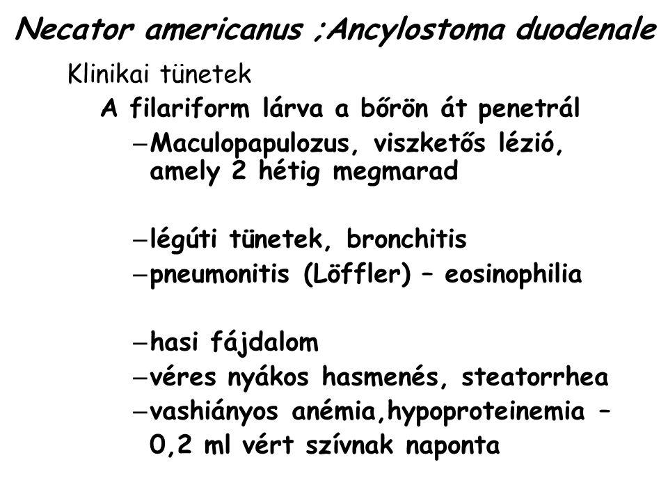 Necator americanus ;Ancylostoma duodenale
