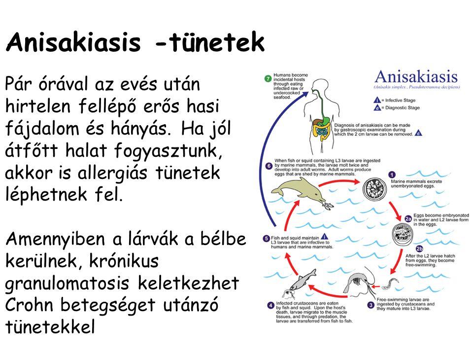 Anisakiasis -tünetek