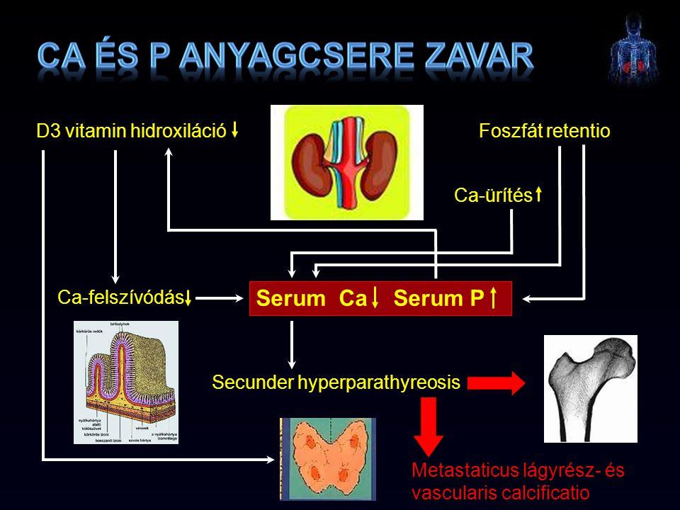 Secunder hyperparathyreosis