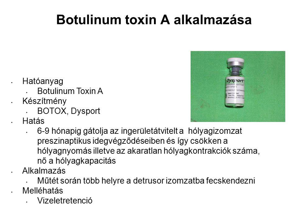 Botulinum toxin A alkalmazása