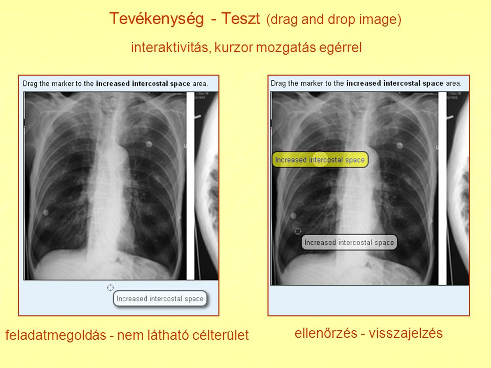Tevékenység - Teszt (drag and drop image)