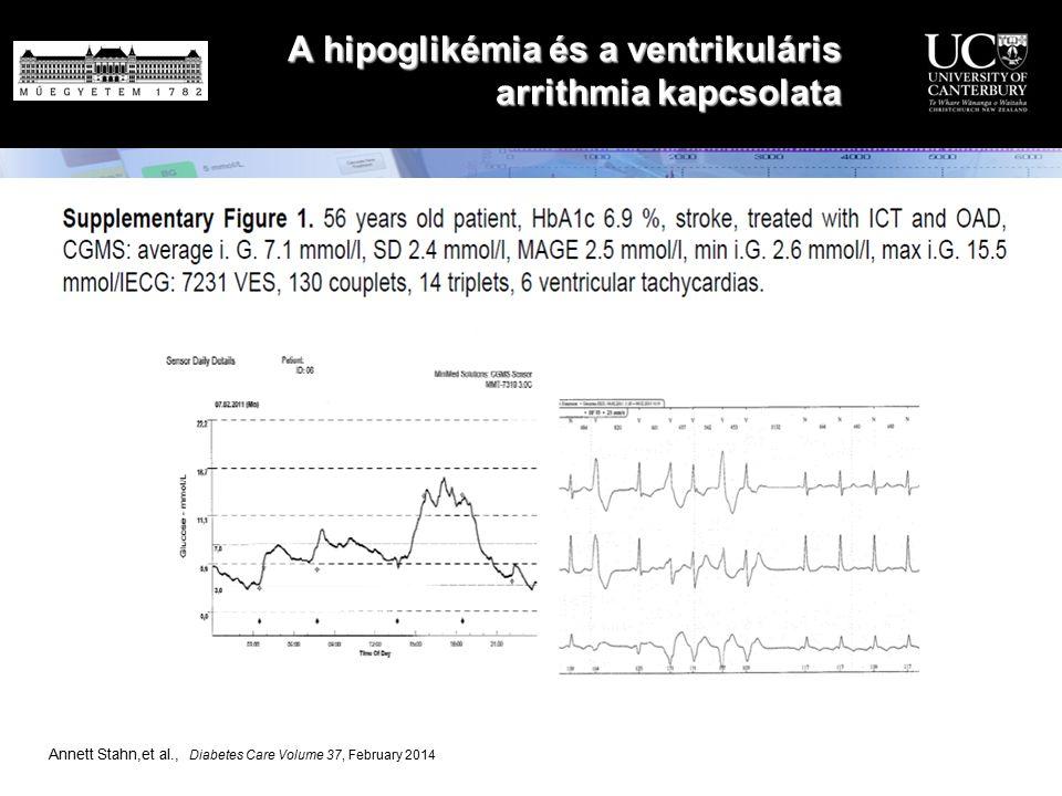 A hipoglikémia és a ventrikuláris arrithmia kapcsolata