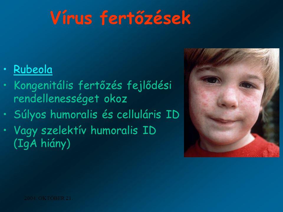 Vírus fertőzések Rubeola