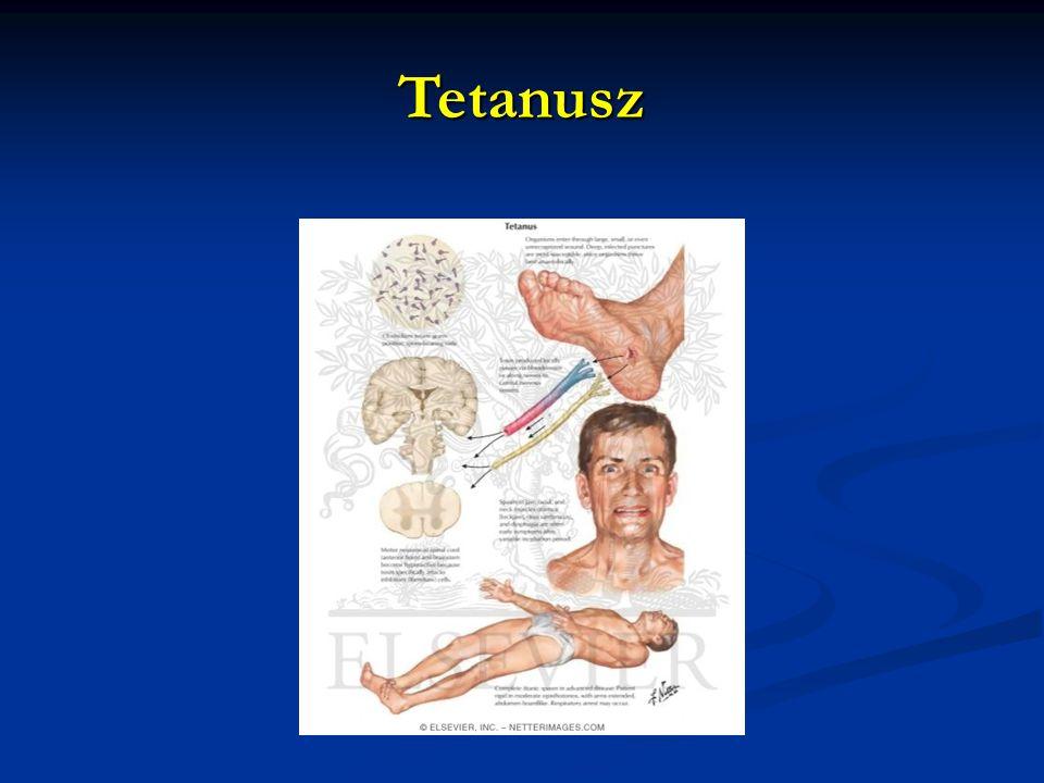 Tetanusz