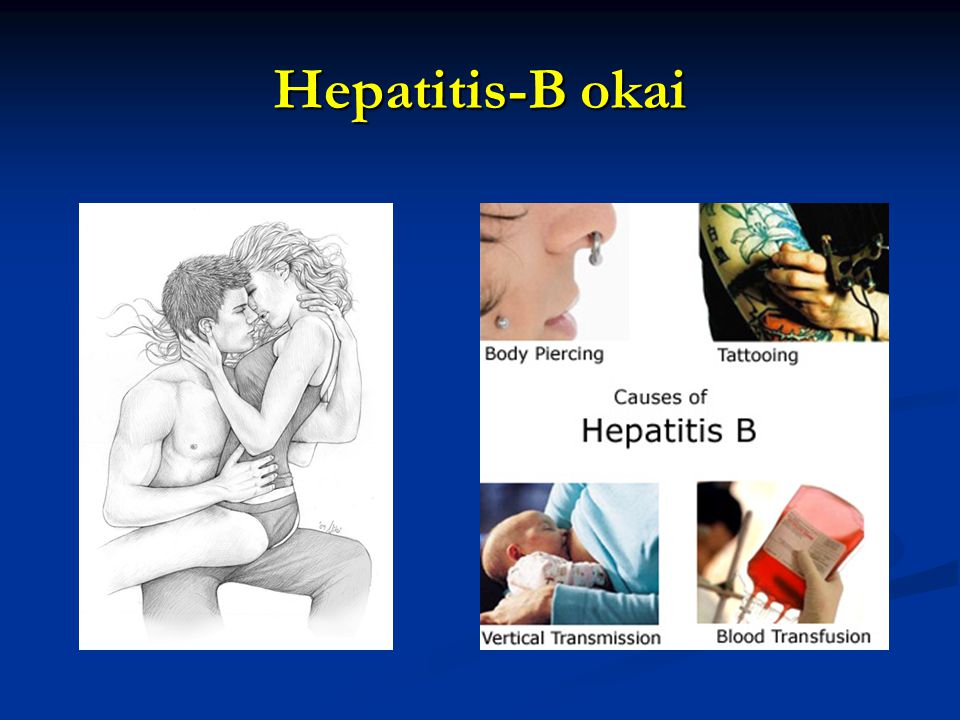 Hepatitis-B okai