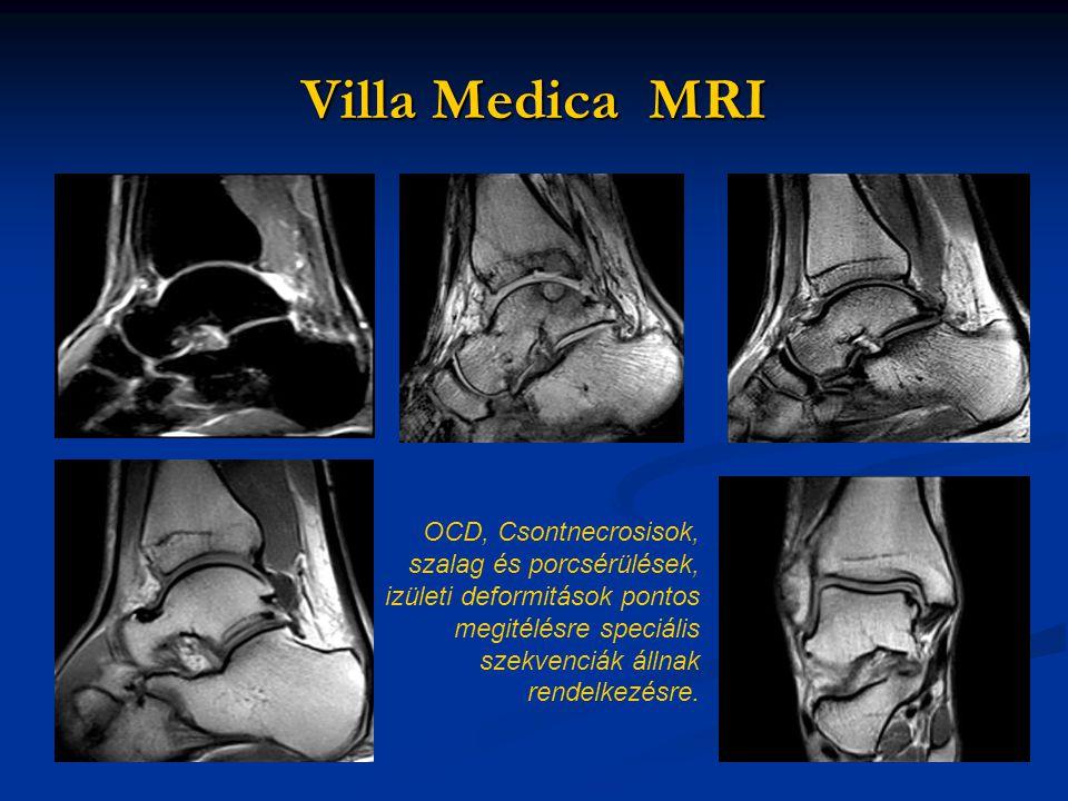 Villa Medica MRI OCD, Csontnecrosisok, szalag és porcsérülések,