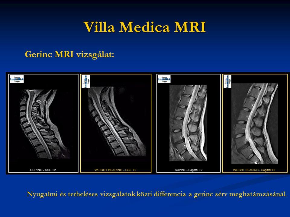 Villa Medica MRI Gerinc MRI vizsgálat: