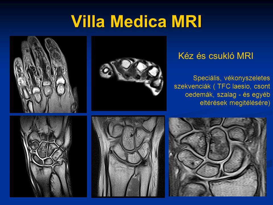Villa Medica MRI Kéz és csukló MRI