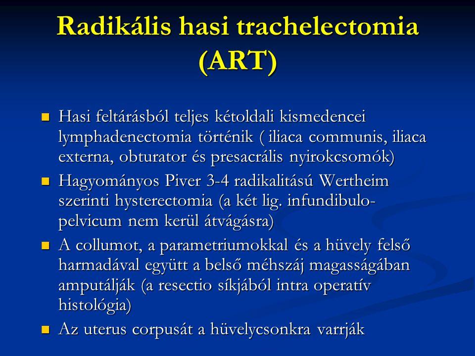 Radikális hasi trachelectomia (ART)