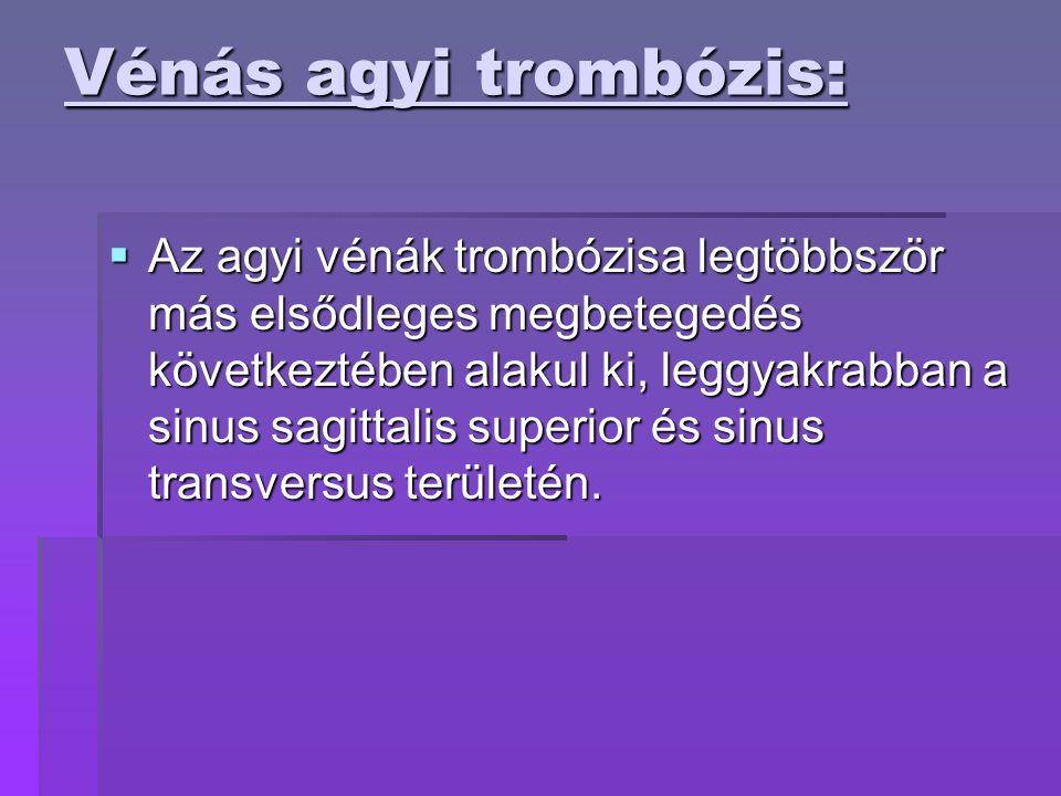 Vénás agyi trombózis: