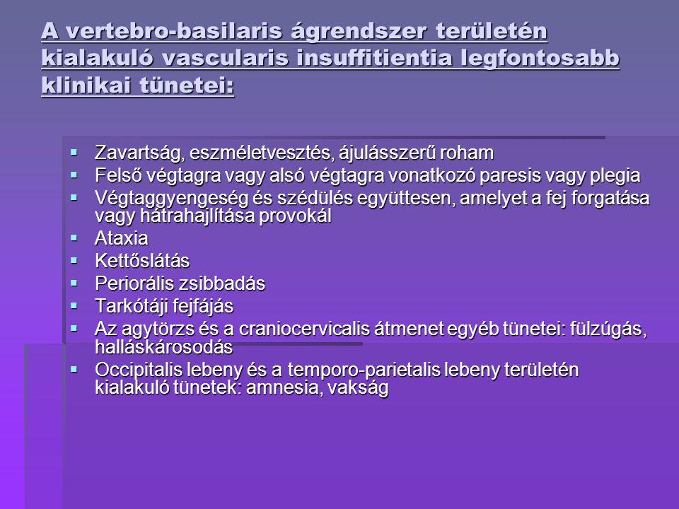 A vertebro-basilaris ágrendszer területén kialakuló vascularis insuffitientia legfontosabb klinikai tünetei: