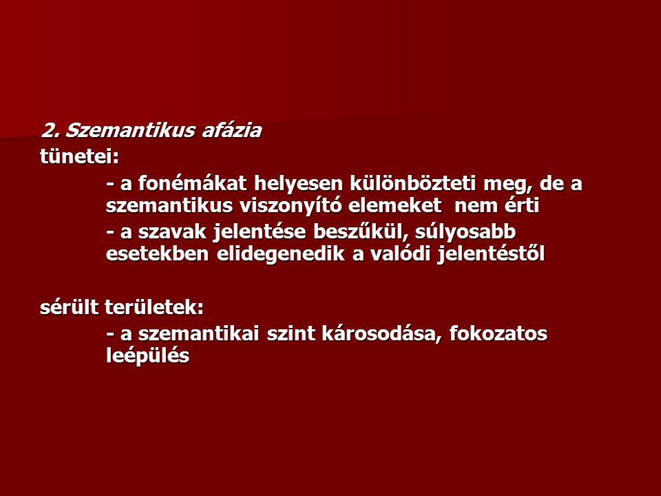 2. Szemantikus afázia tünetei: - a fonémákat helyesen különbözteti meg, de a szemantikus viszonyító elemeket nem érti.