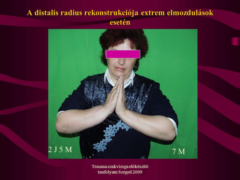 A distalis radius rekonstrukciója extrem elmozdulások esetén