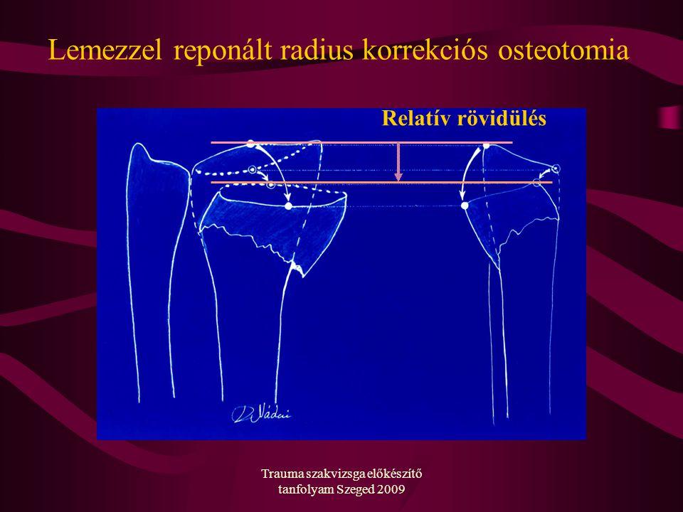 Lemezzel reponált radius korrekciós osteotomia