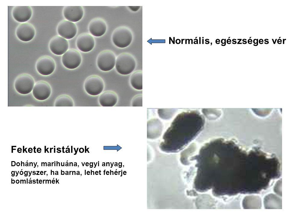 Normális, egészséges vér