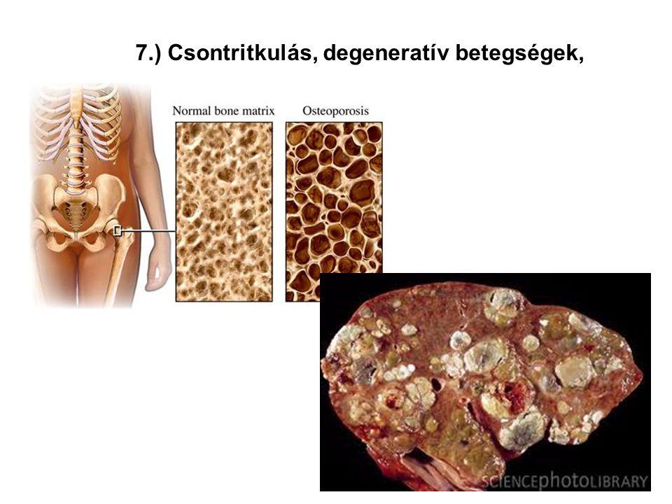 7.) Csontritkulás, degeneratív betegségek,