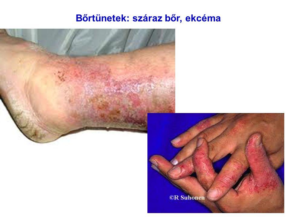 Bőrtünetek: száraz bőr, ekcéma