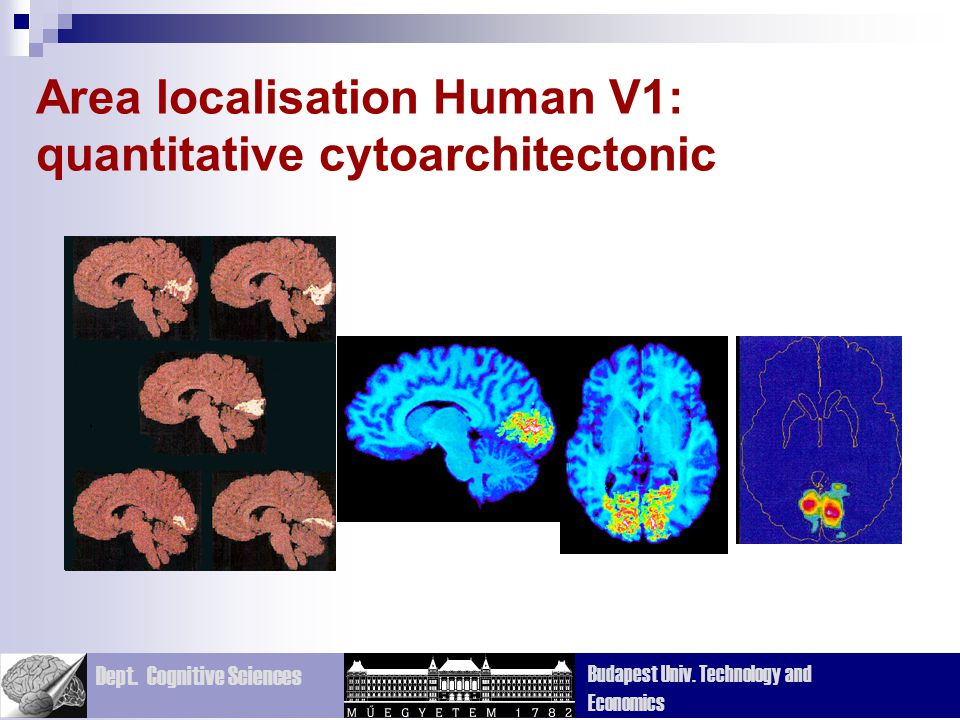 Area localisation Human V1: quantitative cytoarchitectonic