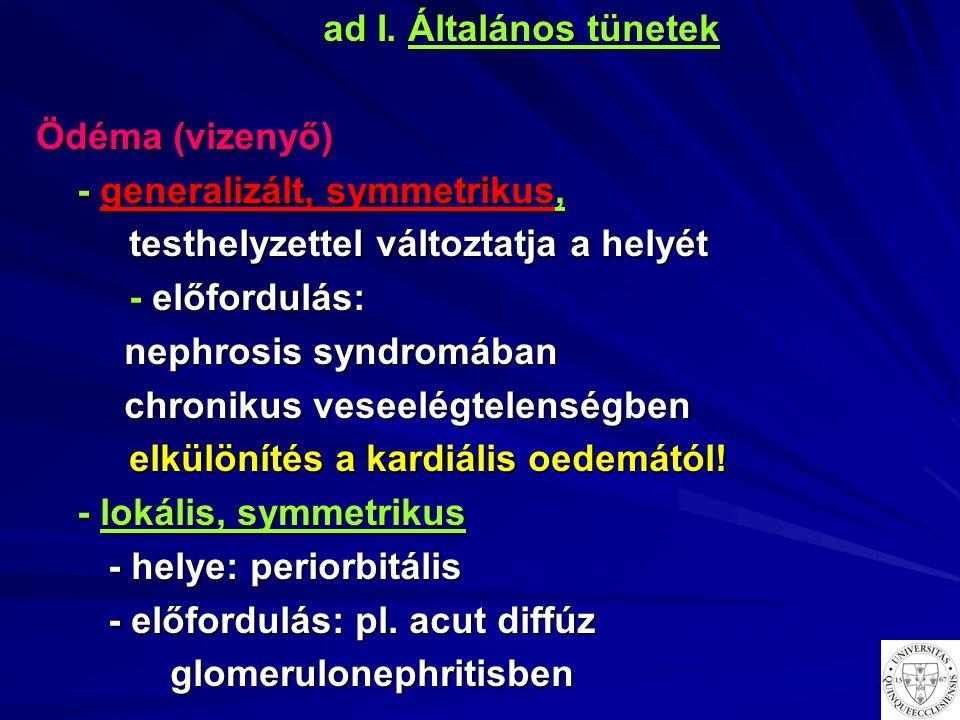 ad I. Általános tünetek Ödéma (vizenyő) - generalizált, symmetrikus, testhelyzettel változtatja a helyét.