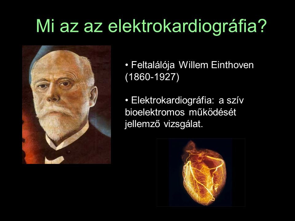 Mi az az elektrokardiográfia