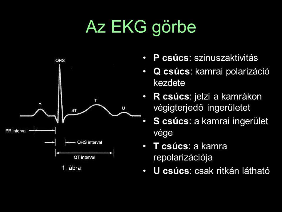 Az EKG görbe P csúcs: szinuszaktivitás
