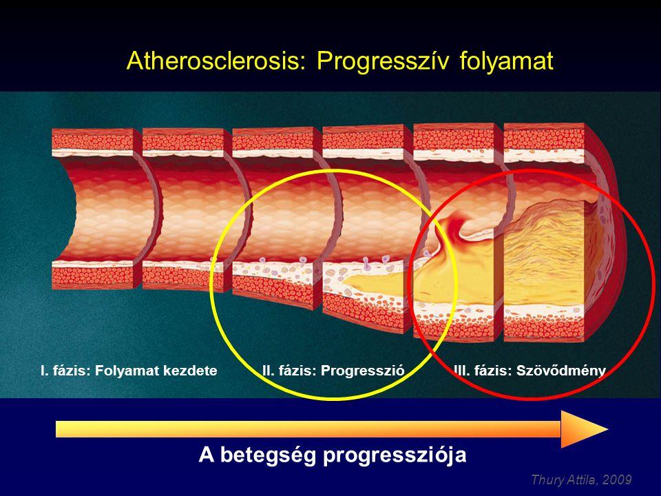 Atherosclerosis: Progresszív folyamat