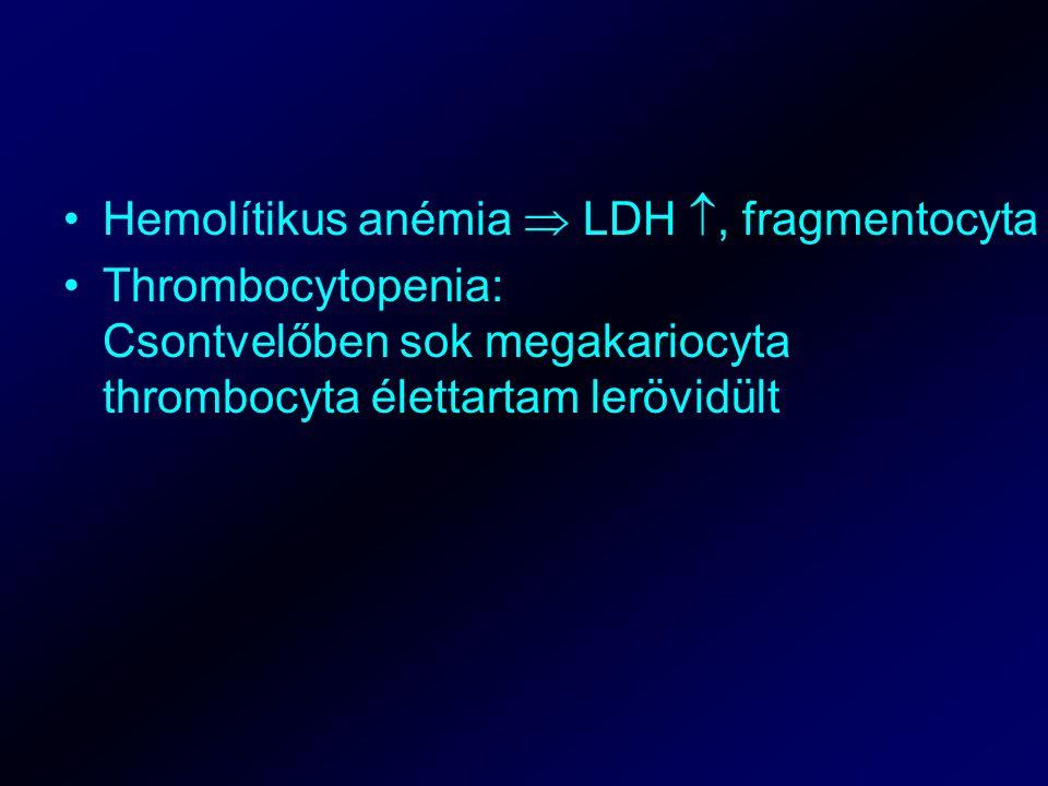 Hemolítikus anémia  LDH , fragmentocyta