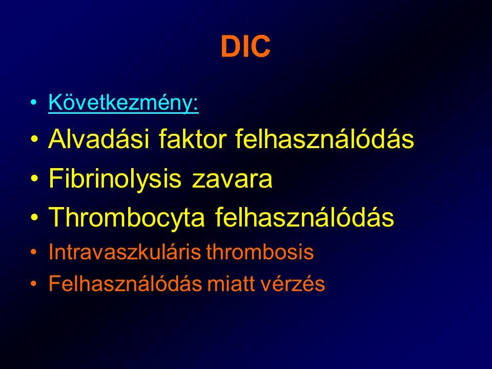 DIC Alvadási faktor felhasználódás Fibrinolysis zavara