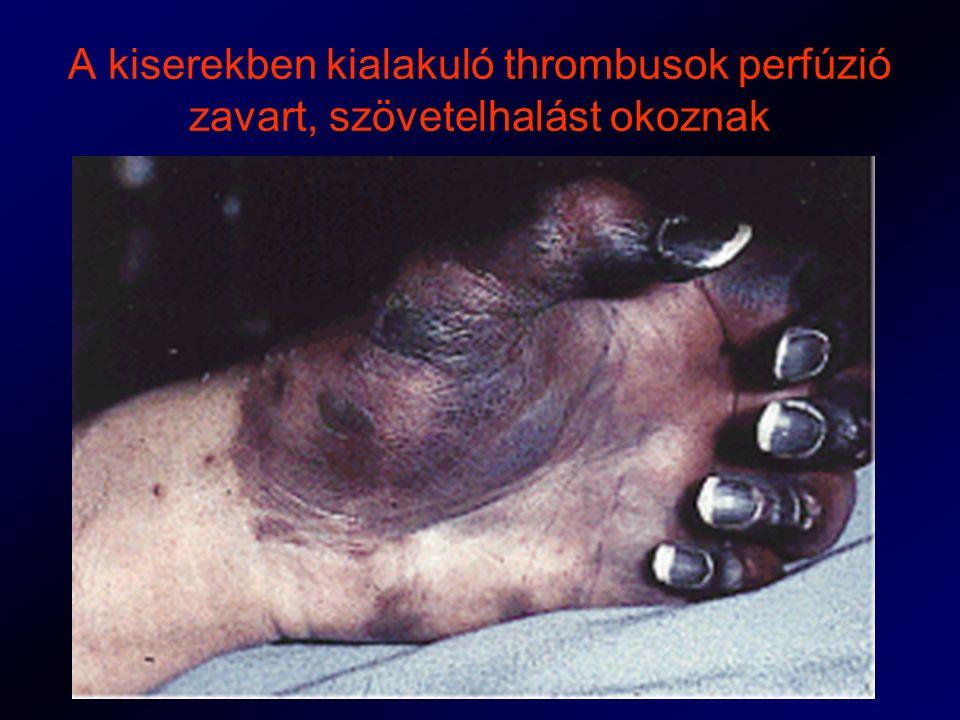 A kiserekben kialakuló thrombusok perfúzió zavart, szövetelhalást okoznak