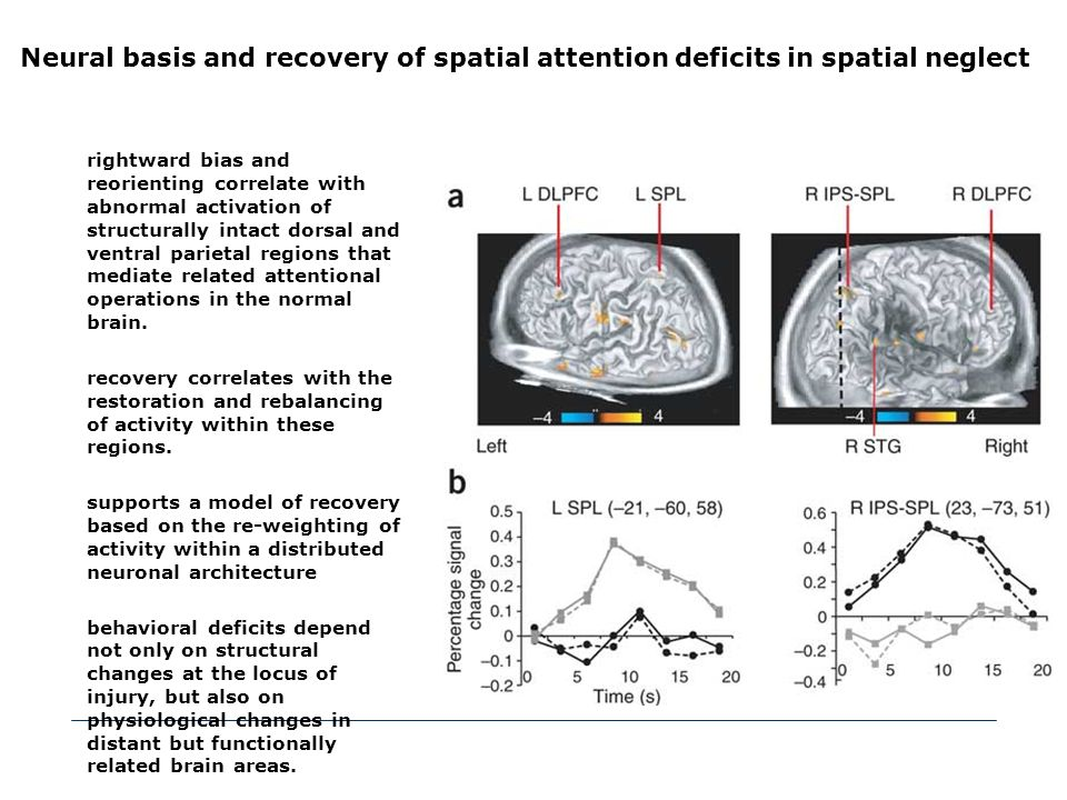 Neural basis and recovery of spatial attention deficits in spatial neglect