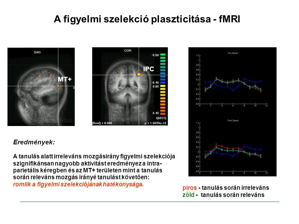 A figyelmi szelekció plaszticitása - fMRI