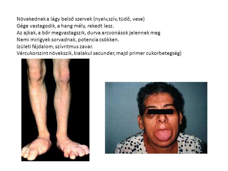Növekednek a lágy belső szervek (nyelv,szív, tüdő, vese) Gége vastagodik, a hang mély, rekedt lesz.