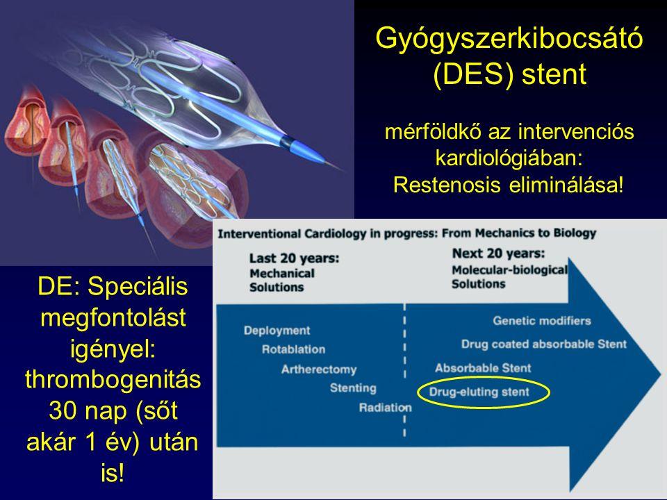 Gyógyszerkibocsátó (DES) stent mérföldkő az intervenciós kardiológiában: Restenosis eliminálása!