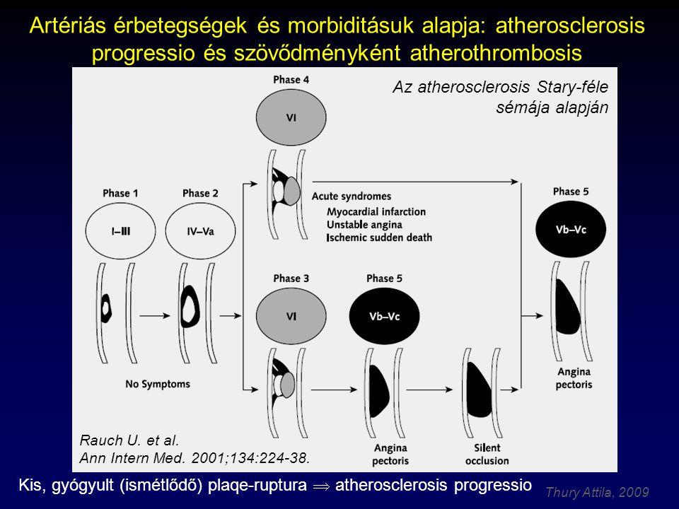 Kis, gyógyult (ismétlődő) plaqe-ruptura  atherosclerosis progressio