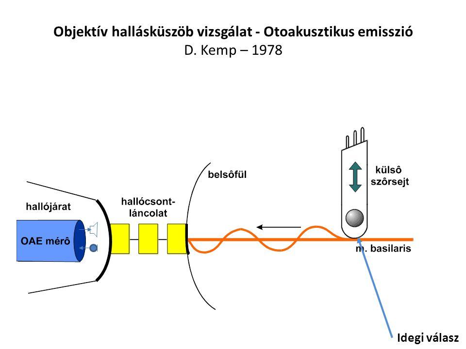 Objektív hallásküszöb vizsgálat - Otoakusztikus emisszió D. Kemp – 1978