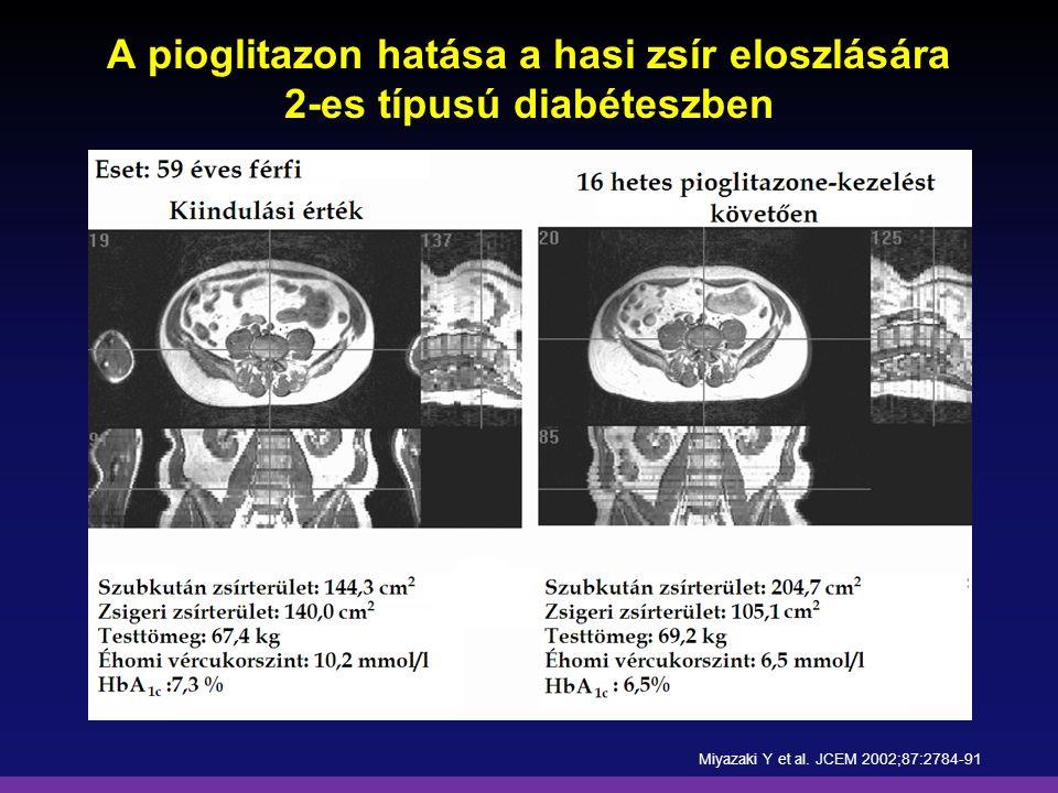 A pioglitazon hatása a hasi zsír eloszlására 2-es típusú diabéteszben