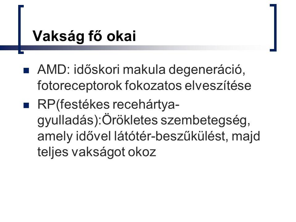 Vakság fő okai AMD: időskori makula degeneráció, fotoreceptorok fokozatos elveszítése.