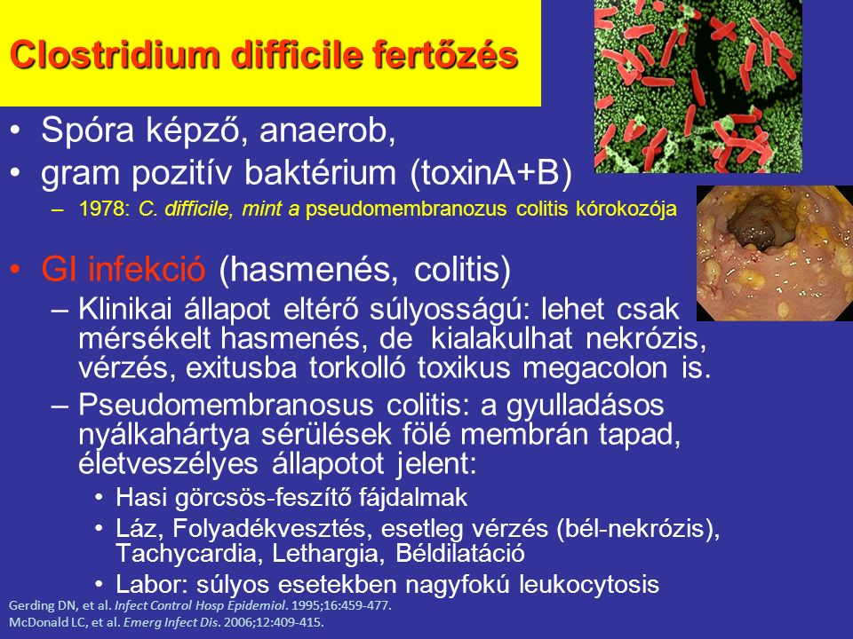 Clostridium difficile fertőzés
