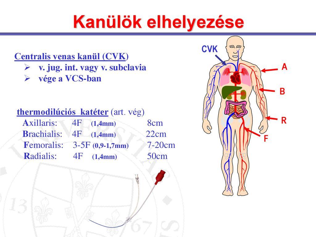 artériás kanülálás