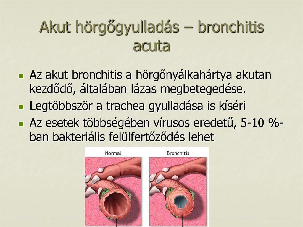 Hörgőgyulladás gyerekeknek