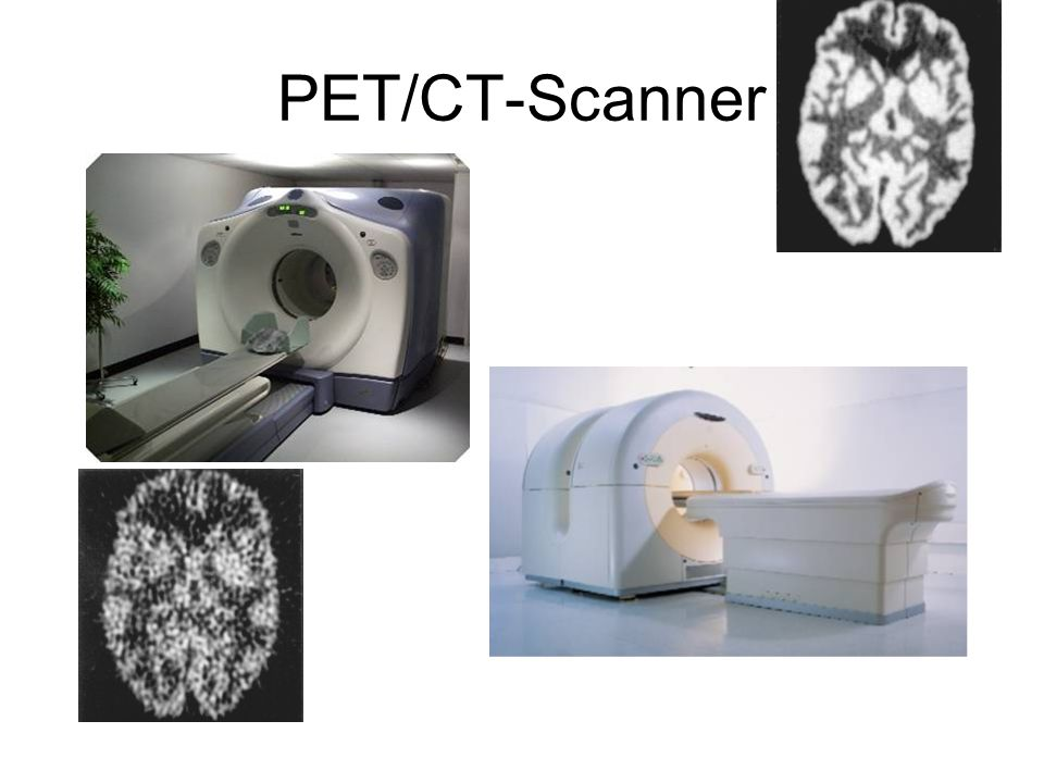 55M Events PET/CT-Scanner 1M Events