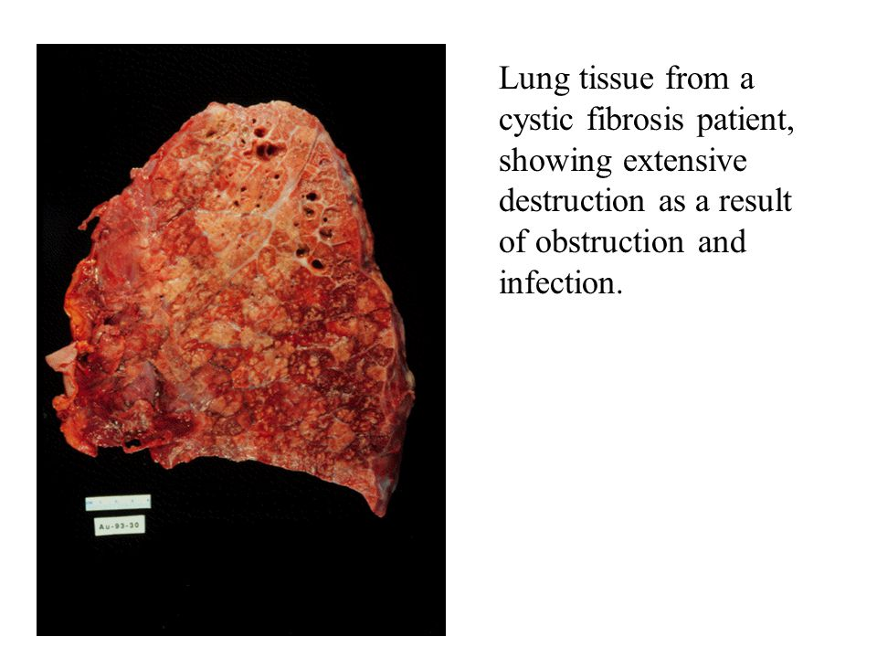 Lung tissue from a cystic fibrosis patient, showing extensive destruction as a result of obstruction and infection.