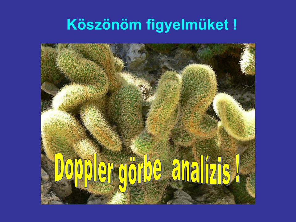 Doppler görbe analízis !