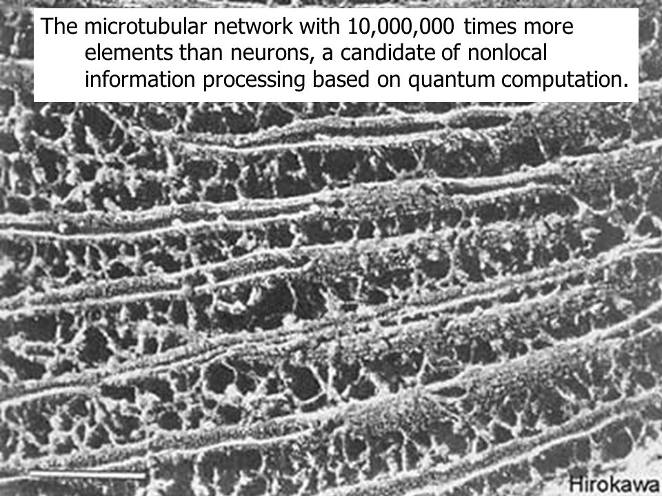The microtubular network with 10,000,000 times more elements than neurons, a candidate of nonlocal information processing based on quantum computation.