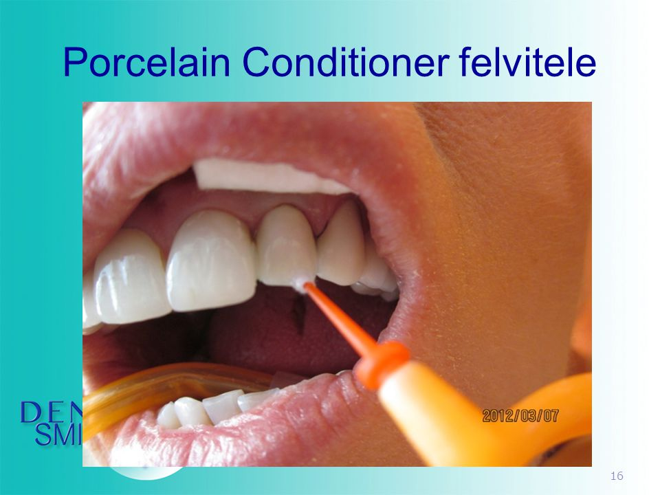 Porcelain Conditioner felvitele