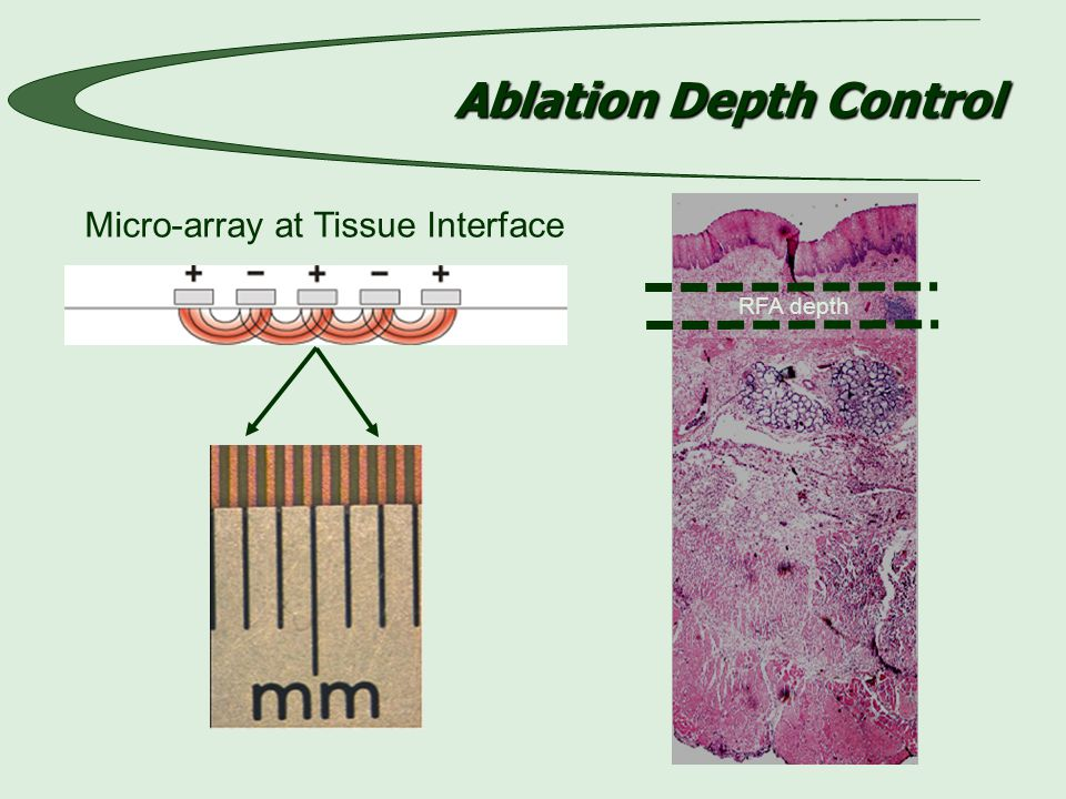 Ablation Depth Control