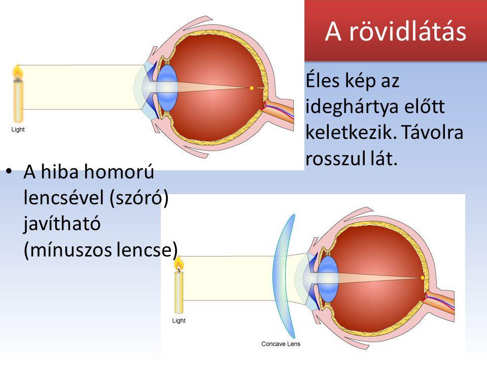 szem és látás bevezetése a látásélesség vizsgálatát hívják